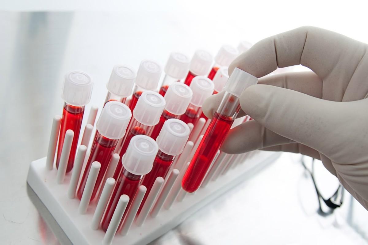 Не стоит пугаться положительного результата анализа на инфекции, возможно вы неправильно подготовились к сдаче